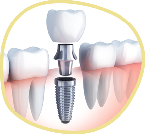 diagram of tooth restoration attaching to a dental implant secured into the jawbone